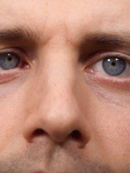 Auge unabhängig voneinander bewegen